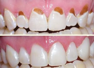 gum-line-fillings-b4after